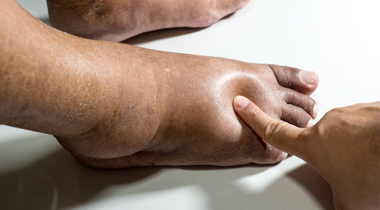 1. The Physiology, Assessment & Management of Chronic Oedema