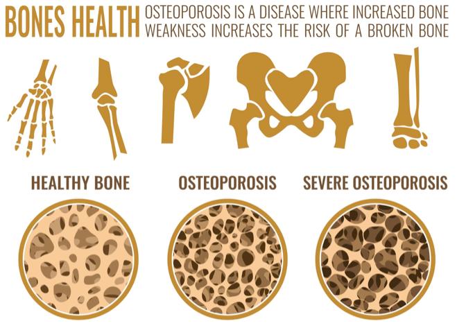 Week 4 - Testing bone density