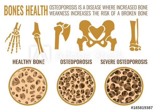 Week 3 - Symptoms of Osteoporosis