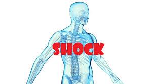 free+shock+management+course
