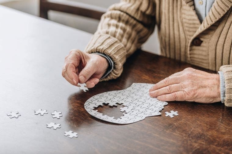 Diagnosis, Treatment & Care of Persons with Alzheimer's & Related Dementias in the Healthcare Setting