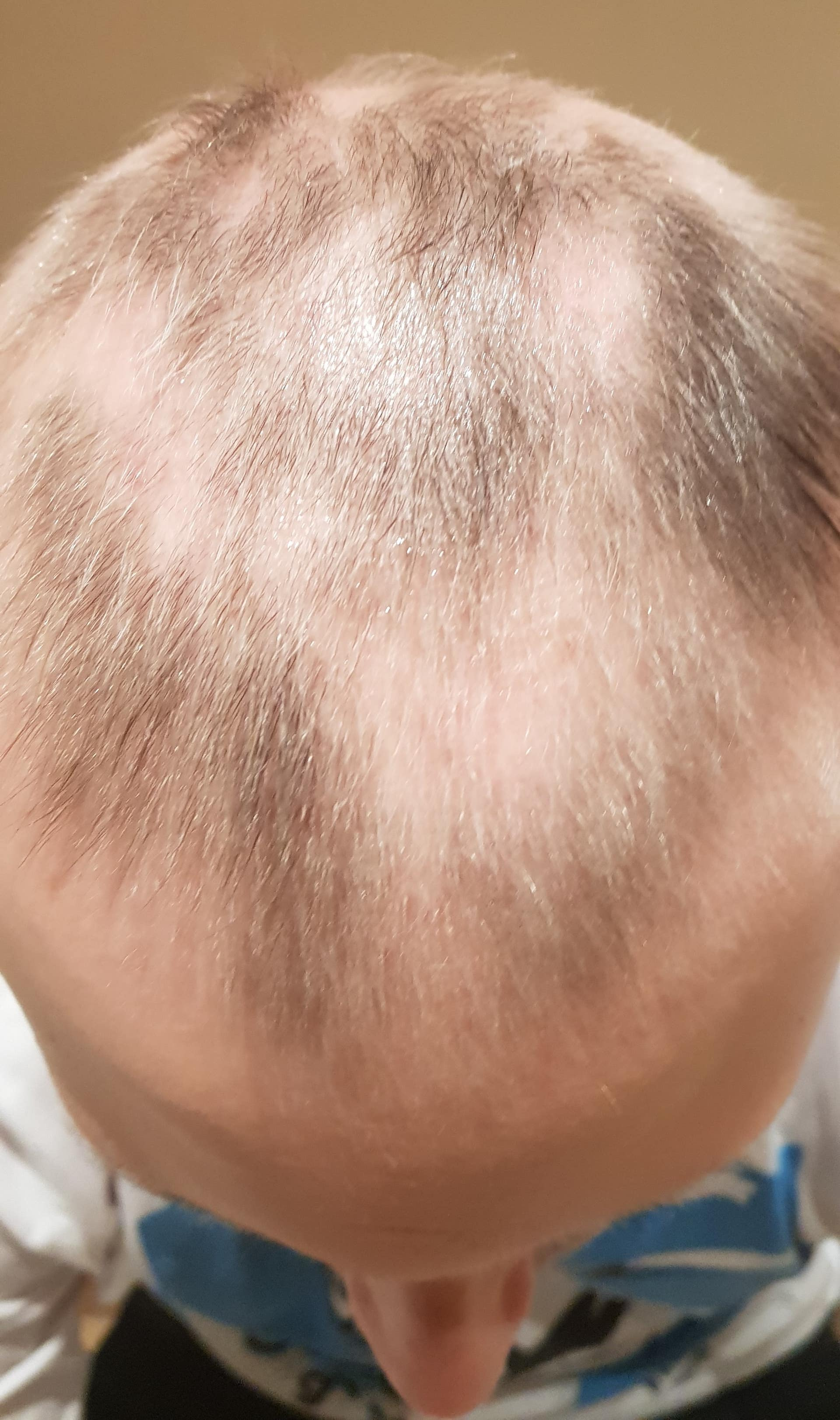 Hair regrowth is patchy from alopecia totalis